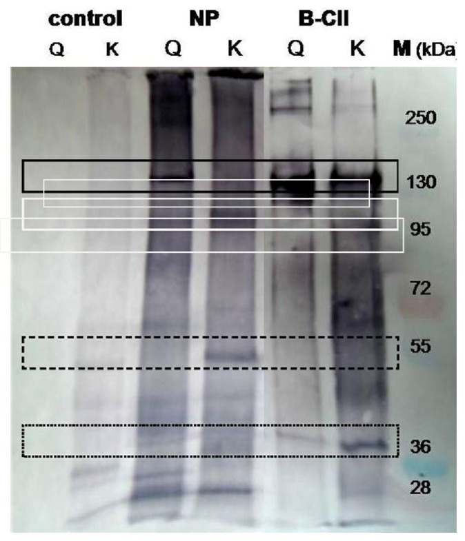 Biotinylation of porcine nucleus pulposus proteins by transglutaminase mediated incorporation of glutamine and lysine probes. Extract of nucleus pulposus in 100 mM HEPES buffer (pH 7) and 2 mM monobiotinylcadaverine (probe for accessible glutamine residues, lines Q) or 0.13 mM of a biotinylated glutamine dipeptide (probe for accessible lysine residues, lines K) were incubated with 1 U/mL TGase at 37 °C for 1.5 h (lines NP). For comparison, extract of nucleus pulposus without TGase (control) and purified bovine type II collagen (B-CII) were used. Staining was performed using streptavidin alkaline phosphatase conjugates and BCIP/NBT as described [ 13 ]. Line M displays a prestained molecular marker mixture.