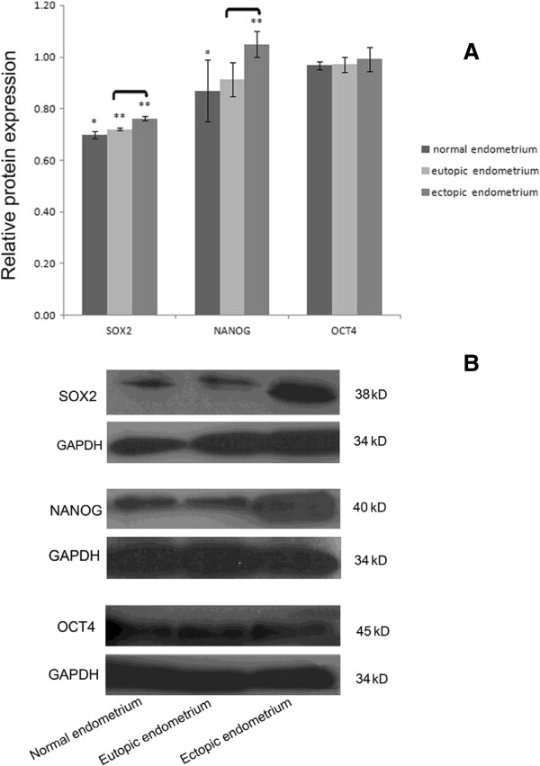 Western blot analysis of SOX2, NANOG, and OCT protein. (A) Relative levels of SOX2, NANOG, and OCT4 protein in normal endometrium (n = 6) and paired eutopic and ectopic endometrium (n = 13). Double-asterisk values are significantly different from single-asterisk values. Asterisks denote significant differences between eutopic or ectopic endometrium and normal endometrium. Connecting lines denote significant differences between eutopic and ectopic endometrium. P