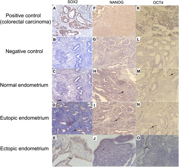 SOX2, NANOG, and OCT4 immunohistochemical staining. Paraffin-embedded normal (n = 6) and paired eutopic and ectopic endometrium specimens (n = 7) were examined. SOX2, NANOG, and OCT4 immunostaining in normal endometrium (C, H, M) of control and in eutopic endometrium (D, I, N) and ectopic endometrium (E, J, O) of endometriosis, and positive control (A, F, K) and negative control (B, G, L) were revealed, respectively (×400 magnification). Arrows denote positive staining.