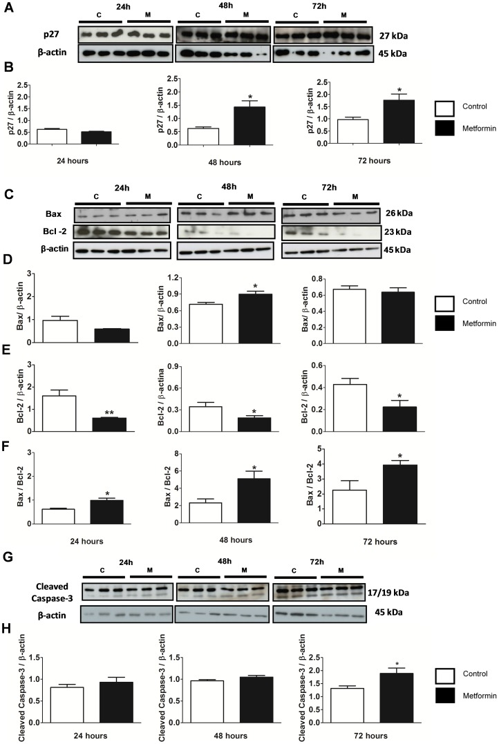 Metformin increased cell apoptosis as measured by p27, Bax, Bcl-2 and cleaved caspase-3 in MCF-7 cells. ( A ) Western blot of p27 and β-actin from MCF-7 cells that were treated with metformin (10 mM) for 24, 48 and 72 hours. ( B ) Western blot ratio analysis of p27 and β-actin. ( C ) Western blot of Bax, Bcl-2 and β-actin from MCF-7 cells that were treated with metformin (10 mM) for 24, 48 and 72 hours. ( D ) Western blot ratio analysis of Bax and β-actin, ( E ) Bcl-2 and β-actin, and ( F ) Bax and Bcl-2 at 24, 48 and 72 hours. ( G ) Western blot of cleaved caspase-3 and β-actin from MCF-7 cells that were treated with 10 mM metformin for 24, 48, and 72 hours. ( H ) Western blot ratio analysis of cleaved caspase-3 and β-actin at 24, 48, and 72 hours. * p