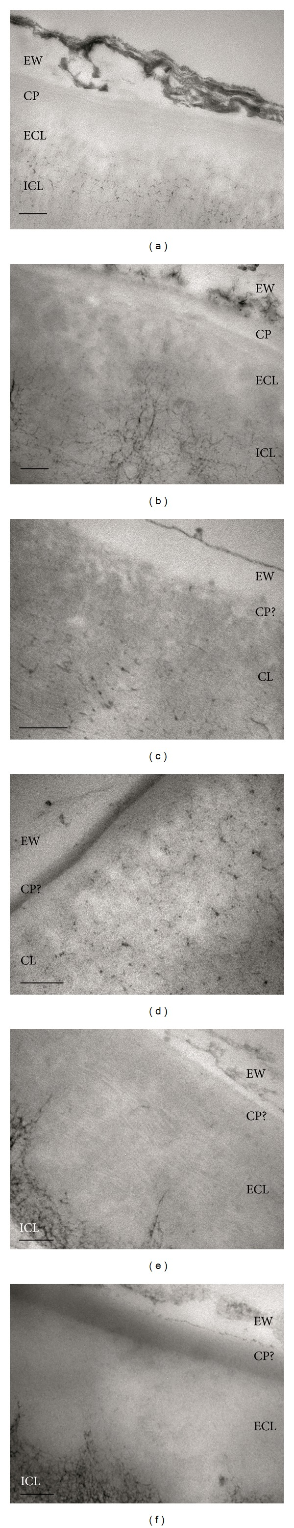 Ultrastructure and cuticular layers of eucalypt, poplar, and pear cuticles embedded in <t>Spurr's</t> (a, c, and e) and LR-White resin (b, d, and f). EW: epicuticular waxes, CP: cuticle proper, CL: cuticular layer, ECL: external cuticular layer, and ICL: internal cuticular layer. Bars: 200 nm.