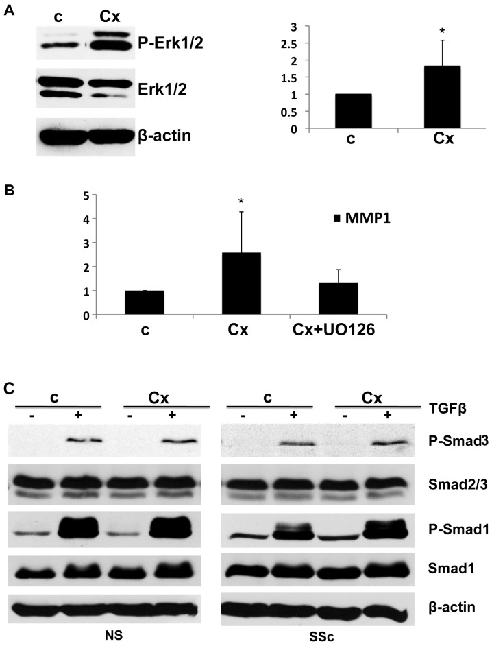 Ciprofloxacin induces <t>Erk1/2</t> activation and has no effect on TGFβ/Smad signaling. (A) Cells were treated with 50 μ g/ml of ciprofloxacin and P-Erk1/2 levels were analyzed after 12 h; bar graph on the right represents relative quantification of 4 experiments. (B) Cells were pretreated with Erk inhibitor <t>UO126</t> and mRNA levels of MMP1 were analyzed after 48 h of ciprofloxacin treatment (50 μ g/ml) (n=3). * P≤0.05 and ** P≤0.01. (C) Healthy cells and systemic sclerosis dermal fibroblasts were pretreated with 50 μ g/ml of ciprofloxacin overnight then with 2.5 ng/ml of TGFβ and levels of P-Smad3, total Smad2/3, P-Smad1 and total Smad1 were analyzed by western blot analysis. Representative blots from 3 experiments are shown. Cx, ciprofloxacin; NS, healthy cells; SSc, systemic sclerosis; c, control.