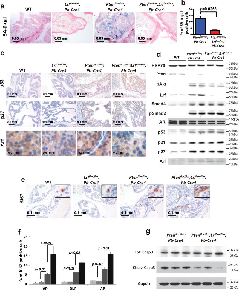 Loss of Lrf leads to senescence bypass and increased proliferation (a) Senescence-associated β-galactosidase staining (SA-β-gal) of WT , Lrf flox/flox ; Pb-Cre4 , Pten flox/flox ;Pb-Cre4 , and Pten flox/flox ;Lrf flox/flox ; Pb-Cre4 prostates of 12 week-old mice show a significant reduction of senescence in Pten flox/flox ;Lrf flox/flox ; Pb-Cre4 prostates as compared to Pten flox/flox ;Pb-Cre4 prostates. (b) Percentage of SA-b-gal positive cells in the prostate of 12 week-old Pten flox/flox ;Pb-Cre4 , and Pten flox/flox ;Lrf flox/flox ; Pb-Cre4 mice (number of mice=3/genotype, number of cells=1000/field, number of fields=10/lobe). (c) anti-p53, anti-p27 and p19Arf staining in 12 week-old WT , Lrf flox/flox ; Pb-Cre4 , Pten flox/flox ;Pb-Cre4 , and Pten flox/flox ;Lrf flox/flox ; Pb-Cre4 prostates. (d) Western blot analysis for Pten, pAkt (Serine 473), Lrf, Smad4, pSmad2, AR, p53, p21, p27, and p19Arf. (e) Ki-67 staining of WT , Lrf flox/flox ; Pb-Cre4 , Pten flox/flox ;Pb-Cre4 , and Pten flox/flox ;Lrf flox/flox ; Pb-Cre4 prostates suggests that loss of Lrf and Pten leads to increased proliferation. (f) Percentage of Ki67 positive cells in the three lobes of WT (light grey bars), Lrf flox/flox ; Pb-Cre4 (grey bars), Pten flox/flox ;Pb-Cre4 (dark grey bars), and Pten flox/flox ;Lrf flox/flox ; Pb-Cre4 (black bars) 12-week-old mice (number of mice=3/genotype, total cells/lobe=5000). (g) Western blot analysis for cleaved caspase 3, total caspase 3, and Gapdh of Pten flox/flox ;Pb-Cre4 , and Pten flox/flox ;Lrf flox/flox ; Pb-Cre4 12-week-old mice prostates.