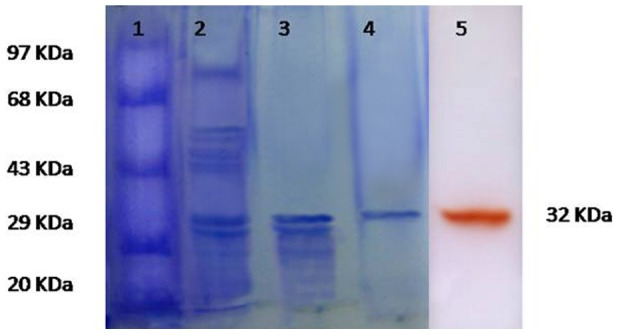 SDS-PAGE analysis of SN4LAC from B. tequilensis SN4. (Protein samples were denatured by heating for 5 min in the presence of SDS and β-mercaptoethanol): Lane 1: Protein markers, Lane 2: Acetone precipitated proteins, Lane 3: Sephadex-150 Column purified enzyme, lane 4: DEAE-Cellulose anion exchange Column purified enzyme, Lane 5: Activity staining; purified laccase stained with guaiacol (samples were heated for 5 min in the presence of SDS without β-mercaptoethanol).