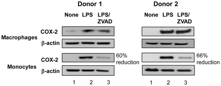 ZVAD reduced COX-2 protein expression in monocytes but not in macrophages. Macrophages and monocytes were obtained from Donor 1 and Donor 2 and were left untreated (lane 1) or were incubated with LPS at 20 ng/ml in the absence (lane 2) or in presence of ZVAD (lane 3) for 12 h. Cells were lysed in 1% NP40 and proteins were analyzed by SDS-PAGE (12 and 16 µg protein per lane for monocytes and macrophages, respectively) and Western Blotting with Abs against COX-2 (panels 1 and 3 from the top) or with β-actin as loading control (panels 2 and 4 from the top). Densitometry was performed on developed films and percent reduction of COX-2 protein expression in LPS-treated monocytes in the presence of ZVAD was calculated relative to the expression of COX-2 in monocytes treated with LPS alone.