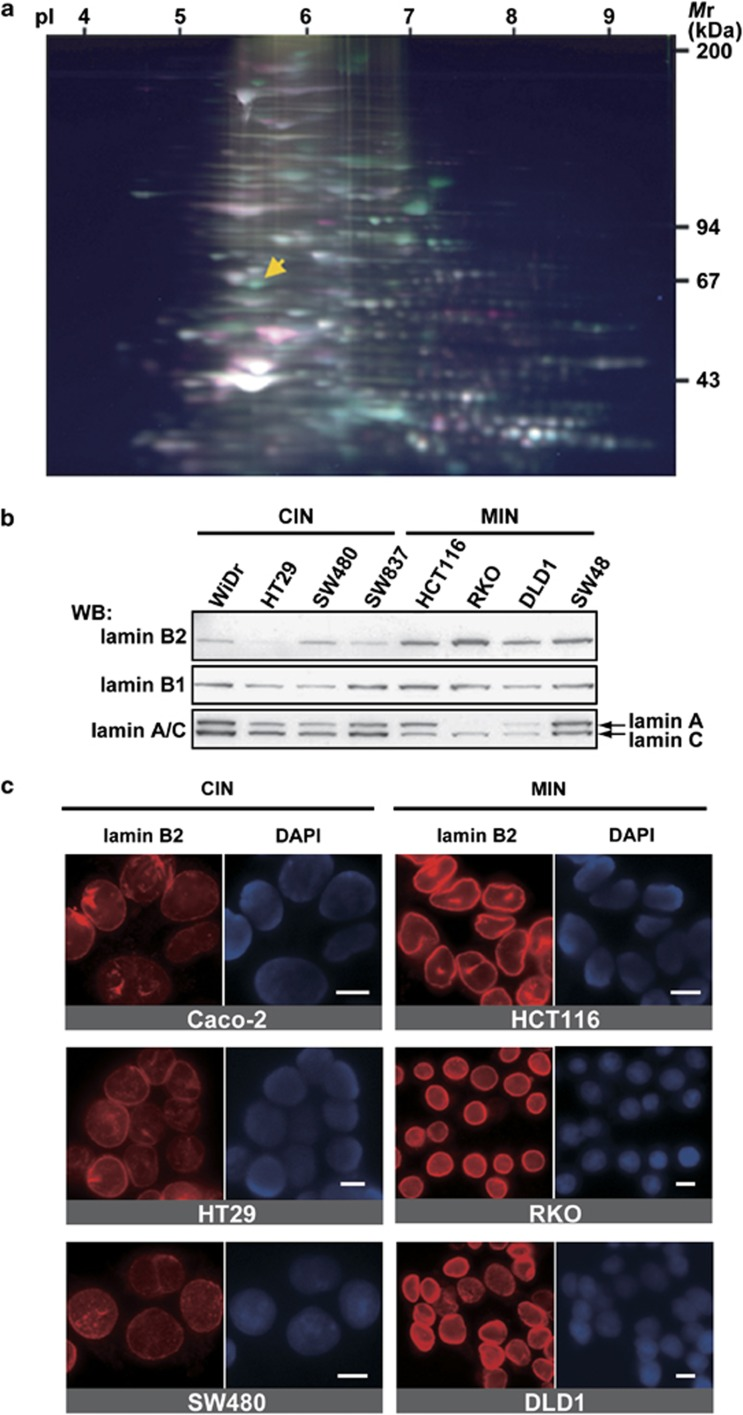 Proteomic analysis of colorectal cancer cell lines revealed that lamin B2 is downregulated in CIN cell lines. ( a ) Proteomic analysis of CIN and MIN cell lines using agarose 2D-DIGE. Nuclear extracts prepared from the cell lines were labeled with Cy3 (MIN) and Cy5 (CIN), and separated with two-dimensional electrophoresis. Increased and decreased protein spots in CIN nuclei are displayed as red (Cy5) and green (Cy3), respectively. Yellow arrow shows the protein spot corresponding to lamin B2. ( b ) Western blot analysis of nuclear extracts (10 μg) from CIN and MIN cell lines using antibodies to lamin B2, B1 and lamin A/C. ( c ) Immunostaining of CIN and MIN cell lines using anti-lamin B2 antibody and DAPI for DNA. Images show interphase cells. Scale bars, 10 μm.