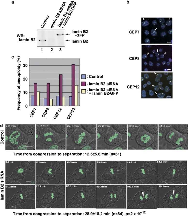 Repression of lamin B2 induces mitotic defects and aneuploidy. ( a ) Lamin B2-siRNA alone or together with lamin B2-GFP expression plasmid was transfected into MIN-type HCT116 cells and, 48 h later, the expressions of lamin B2 and lamin B2-GFP were checked by western blotting. Lane 1, control-siRNA; lane 2, lamin B2-siRNA alone; lane 3, lamin B2-siRNA+lamin B2-GFP expression plasmid. ( b ) FISH analysis using centromere probes (CEP7, 8 and 12) was performed 48 h after transfection with lamin B2-siRNA in HCT116 cells. White arrows indicate aneuploid cells. ( c ) Frequency of aneuploid cells in HCT116 cells transfected with either lamin B2-siRNA alone or together with lamin B2-GFP expression plasmid. Centromere singles (CEP7, 8, 12 and 15) were counted in at least 200 cells. ( d ) HCT116 cells stably expressing histone H2B-GFP were treated with control or lamin B2-siRNA for 24 h. Time-lapse images of the cells were taken at 3- to 5-min intervals. Images shown are representative of control or lamin B2-siRNA-treated cells from prophase to anaphase. Control cells took 12.5±5.6 min ( n =81) from congression to separation of sister chromatids, whereas lamin B2-siRNA-treated cells took 28.9±18.2 min ( n =84). Arrowheads indicate a chromosomal bridge. Scale bars, 10 μm.
