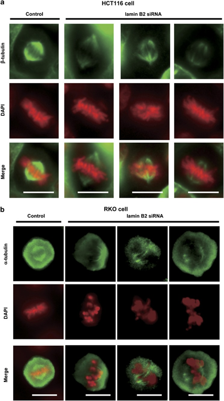 Repression of lamin B2 abrogates mitotic spindle formation. MIN cell lines, HCT116 and RKO, were transfected with control- or lamin B2-siRNA. Forty-eight hours after transfection, the cells were synchronized with thymidine for 16 h and then released into fresh medium. Cells that entered mitosis were analyzed by immunostaining using anti-β-tubulin ( a ) and α-tubulin ( b ) antibodies in HCT116 ( a ) and RKO ( b ) cells, respectively. DNA was marked by DAPI. Scale bars, 10 μm.