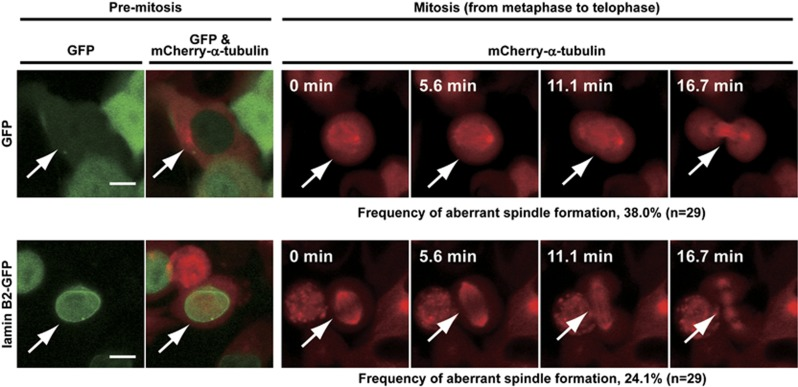 Ectopic expression of lamin B2 in CIN cancer cells prevents aberrant mitotic spindle formation. WiDr cells stably expressing mCherry-α-tubulin were transfected with lamin B2-GFP or GFP (control) expression plasmid. Living cells expressing lamin B2-GFP or GFP were monitored by confocal microscopy. Images shown are representative cells (arrows). Scale bars, 10 μm. Elapsed times during chromosome segregation are indicated at the top of mitotic images. Percentages of cells exhibiting aberrant spindle formation during mitosis (GFP, n =29; lamin B2-GFP, n =29) are indicated below mitotic images.