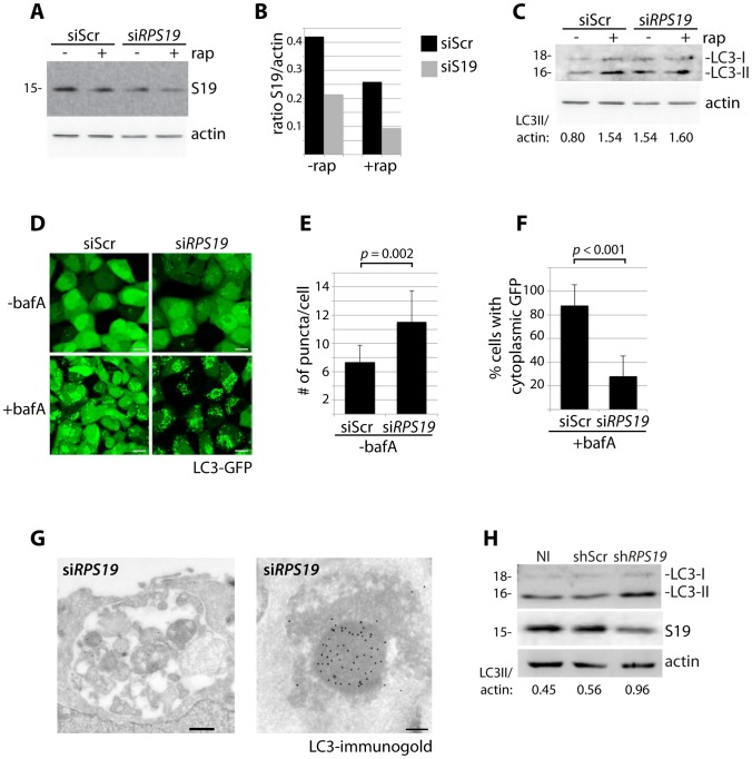 Knock down of RPS19 induces autophagy. ( A ) Western blot analysis of RPS19 expression in GFP-LC3 HEK cells transfected with siScr or si RPS19 and either untreated or treated with 100 nM rapamycin overnight ( B ). Densitometer analysis of the ratio of RPS19 to actin expression from Fig. 1A . ( C ) Western blot analysis of LC3 expression in GFP-LC3 HEK cells transfected with siScr or si RPS19 either untreated or treated with 100 nM rapamycin overnight. ( D ) Confocal analysis of GFP-LC3 HEK cells transfected with siScr or si RPS19 and either untreated or treated with 50 nM bafilomycin A for 4 hours. Size bars = 10 µM. ( E ) Quantification of the number of GFP-LC3 puncta per cell from Fig. 1D . At least 8 shots from 3 independent transfections are quantified. ( F ) Quantification of the percent of cells in Fig. 1D with cytoplasmic GFP-LC3. ( G ) Representative electron micrographs of GFP-LC3 HEK cells transfected with si RPS19 and immunogold labeled with LC3 antibodies. Size bar on left panel = 500 nM, on right panel = 200 nM. ( H ) Western blot analysis of LC3 expression in CD34 + cells either not infected (NI), infected with a scrambled control (shScr) or infected with a shRNA against RPS19 (sh RPS19 ).