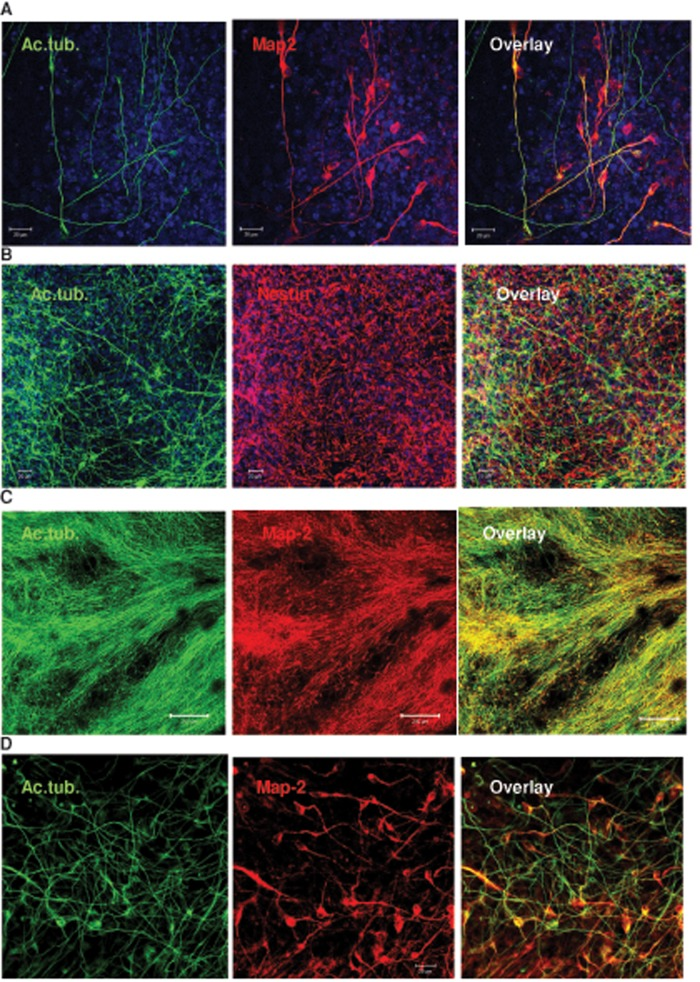 C 24:1 ceramide promotes neural process formation in human ES and iPS cells. Human ES or iPS cells were treated as described in the legend to Figure 6 . (A) Colocalization of acetylated tubulin (green) and Map-2 (red) shows that many processes originate in neural progenitors or differentiated neurons. (B–D) Acetylated tubulin–labeled processes and nestin-labeled NPs are also visible in iPS cells that were differentiated following the protocol used for human ES cells. Neural processes of C 24:1 ceramide–treated iPS cells are elongated ( > 200 μm) and colabeled for Map-2. Bars, 20 μm (A, B, D), 200 μm (C).