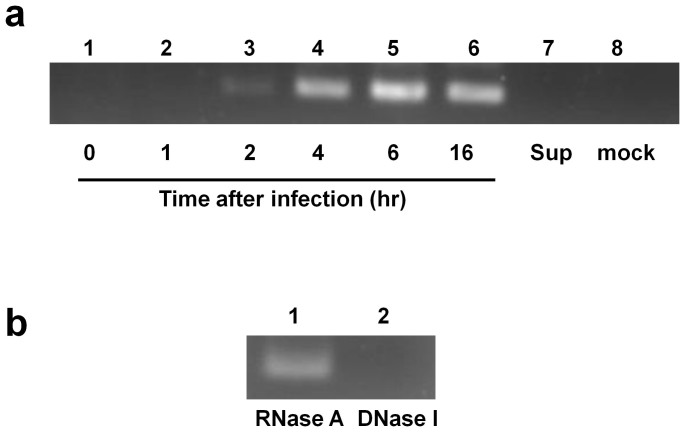 Detection of VSV DNA in 293T human cells. (a) DNA was extracted from 293T cells at 0, 1, 2, 4, 6, or 16 hr after infection with VSV at an MOI of 0.1 and subjected to PCR amplification for the VSV N gene using the N478-F/N681-R primer pair. The VSV inoculum (Sup) (lane 7) and mock-infected samples (lane 8) were included as controls. The samples prepared 1 hr after inoculation (lane 2) or VSV Sup did not produce VSV DNA. The DNA sequence of the PCR product obtained from the cells harvested at 16 hr post-infection (lane 6) was verified to be the expected VSV N amplicon. (b) DNA samples were harvested at 16 hr post-infection and were treated with RNase A or DNase I and subsequently used for PCR. The VSV DNA was not detected after DNase I treatment (lane 2). All samples used in Figures 1a and 1b were prepared in a single experiment, and cropped gel images are shown.