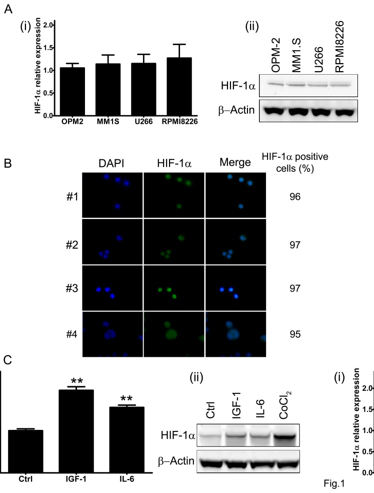 HIF-1α expression in multiple myeloma cells (A) Baseline level of HIF-1α mRNA (i) and protein product (ii) were assessed in four MM cell lines by qRT-PCR and Western Blotting (50 μg/lane) analysis, respectively. (B) HIF-1α protein expression in CD138 + cells derived from bone marrow aspirates from MM patients was monitored using immunofluorescence microscopy. The percentage of HIF-1α positive cells was calculated evaluating at least 200 cells. Green fluorescence: HIF-1α; Blue fluorescence: DAPI. (C) To evaluate the pro-survival stimuli modulation of HIF-1α mRNA expression (i) and protein synthesis (ii), the MM1.S cells were treated with IGF-1 (100 ng/ml) or IL-6 (50 ng/ml) for 4h. The effect of 24h treatment with CoCl 2 (100 μM) on HIF-1α stabilization was taken as control. The immunoblot assays were performed twice with similar results. Representative data from one experiment are presented. mRNA expression of HIF-1α was normalized to GAPDH level. Histograms show the mean value ± SD of three independent experiments. ** p