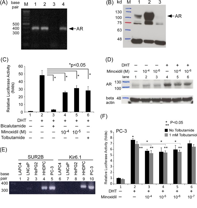 Minoxidil suppresses AR-related functions in skin cells (A-B) AR expression in cells and cell lines at the (A) mRNA and (B) protein levels. Lane 1, HHDPCs; lane 2, LNCaP cells; lane 3, PC-3 cells. (C) HHDPCs in 24-well plates were transfected with 1,000 ng of MMTV-Luc reporter plasmid. After 16 h, ethanol, 10 nM DHT, 10–100 μM minoxidil, and/or 1 mM tolbutamide was added and cells were incubated for an additional 16 h. Luciferase activity in cell lysates was normalized to protein concentration. Relative luciferase activity was calculated as described in Materials and methods. (D) After seeding HHDPCs in dishes and culturing for 24 h, 10 μg/ml cyclohexamide, 10 nM DHT, and different concentrations of minoxidil were added and cells were incubated for an additional 2 h. AR and β-actin (loading control) protein levels were determined by Western blotting. (E) Potassium channel subunit expression in different cells and cell lines. Prostate cancer cell lines: LAPC4, LNCaP, and PC-3; liver cancer cell line: HePG2; skin cells: HHDPCs. PC-3 cells expressed the same potassium channel subtype (SUR2B/Kir6.1) as HHDPCs. (F) Tolbutamide did not reverse minoxidil effects in AR transactivation reporter assays in PC-3 cell. The same procedure as in (C) was performed except with the addition of different concentrations of tolbutamide
