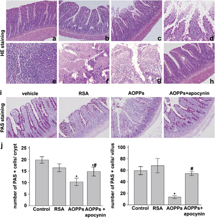 AOPPs treatment of rats induced morphological changes of the small intestinal epithelium and altered the number of goblet cells. H E staining showed almost normal intestine in ( a ) vehicle and ( b ) RSA groups, whereas ( c , d ) epithelial erosion and inflammatory cell invasion into the lamina propria and submucosal layer, ( e ) lymphoid follicle hyperplasia, ( f ) epithelial necrosis, and ( g ) epithelial exfoliation were found in AOPP-treated group. ( h ) Apocynin attenuated the degree of AOPP-induced tissue injury. ( i ) PAS staining in the small intestines of rats treated with or without AOPPs. ( j ) Quantification of goblet cells per crypt±S.D. of control, RSA, AOPPs, and AOPPs+apocynin group ( n =6 per group). * P