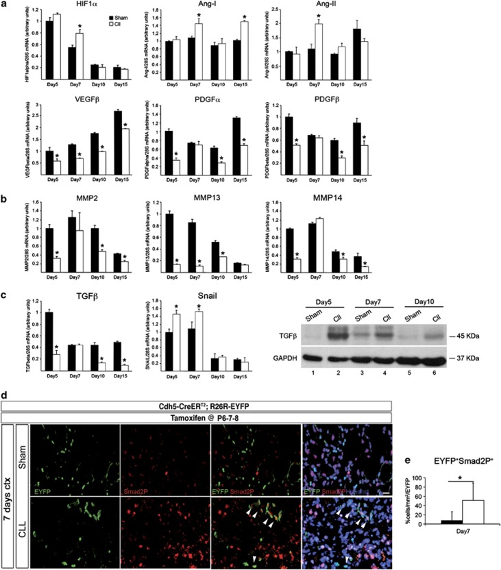 MP depletion affects pro-angiogenic factor production and TGF- β /SMAD signaling during muscle healing. ( a – c ) TA muscles were collected from sham and Cll-injected mice 5, 7, 10 and 15 days after CTX injection. Muscles were totally lysated and processed for RNA extraction. Real-time PCR analyses for mRNA expression of HIF1- α , Ang-I, Ang-II, PDGF- α , PDGF- β , VEGF- β ( a ), MMP-2, MMP-13, MMP-14 ( b ), TGF- β and Snail ( c ) were performed. Results were normalized to 28S mRNA levels and expressed as relative fold changes compared with sham-treated mice 5 days after damage. The data are expressed as means±S.E.M. ( n =5). Statistically significant differences are indicated (sham versus Cll * P