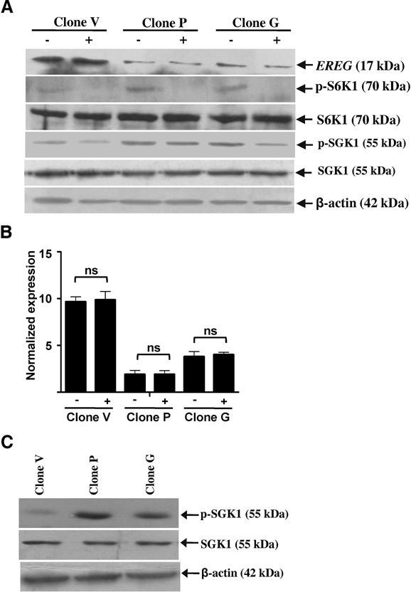 Non-canonical regulation of EREG by TSC2 and the effect of TSC2 overexpression on mTORC2. ( A ) Western blot analysis to assess the levels of EREG, p-S6K1, S6K1, p-SGK1 and SGK1 following the treatment of cells from stable clones with 100 nM rapamycin (+) or vehicle control DMSO (−). β-actin was used as a loading control. ( B ) qRT-PCR analysis of EREG following the treatment of cells from stable clones with 100 nM rapamycin (+) or DMSO (−). RPL35A was used as a normalizing control. ns, data not significant. ( C ) Western blot analysis of cells from stable clones to assess the levels of SGK1 and p-SGK1. β-actin was used as a loading control.