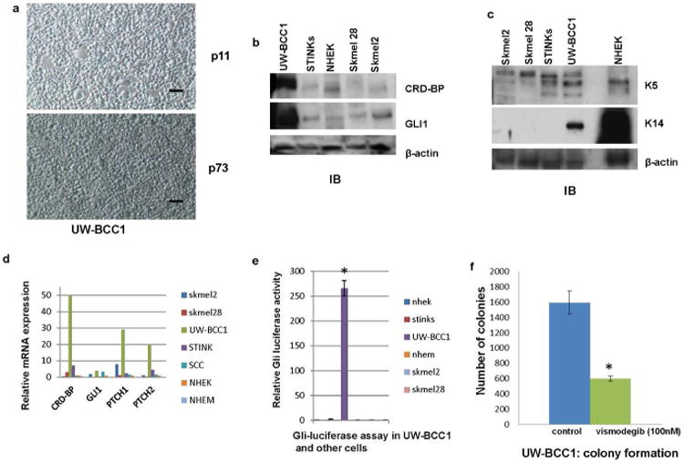 Characterization of a human BCC cell line (UW-BCC1) a. UW-BCC1 in culture at passage 11 and at passage 73. A BCC sample was sequentially trypsinized for 6, 12 and 18 hrs in a humidified cell culture incubator with 5% CO 2 and grown in low calcium media as described in the supplemental information . Scale bar = 30 μm. b. Protein expression of CRD-BP and GLI1 in UW-BCC1 determined by immunoblot analyses. β-actin was used as internal control. This is a representative of three independent experiments. c. Protein expression of keratin 5 and keratin 14 in UW-BCC1 determined by immunoblot analyses. β-actin was used as internal control. This is a representative of three independent experiments. d. Relative expression of CRD-BP, GLI1, PTCH1, and PTCH2 in mRNA isolated from UW-BCC1 and other cell lines determined by quantitative RT-PCR. e. UW-BCC1 and other cells as indicated were grown in 6 well plates and co-transfected with 8×3′GLI BS-LucII reporter plasmid and pSV-40 -galactosidase plasmid. 48 hrs after transfection, the luciferase activity was estimated using luciferase reporter assay reagent (Promega). β-galactosidase was used for normalization and estimated using β-galactosidase assay reagent (Pierce). Each experiment was done at least twice and in triplicates. Each value represents Mean+/-SD. *P≤0.05 f. UW-BCC1 was grown in two 100 mm plates and transfected with pTK-puro plasmid. Equal number of cells from each plate was seeded in five 100 mm plates. One set of plates was treated with Vismodegib (100 nM) for 72 hrs and puromycin (5 μg) for 10 days. The other set of plates was treated with puromycin (5 μg) alone for 10 days. Colonies were counted under the microscope. Each experiment was done at least twice and in triplicates. Each value represents Mean+/-SD. *P≤0.05.
