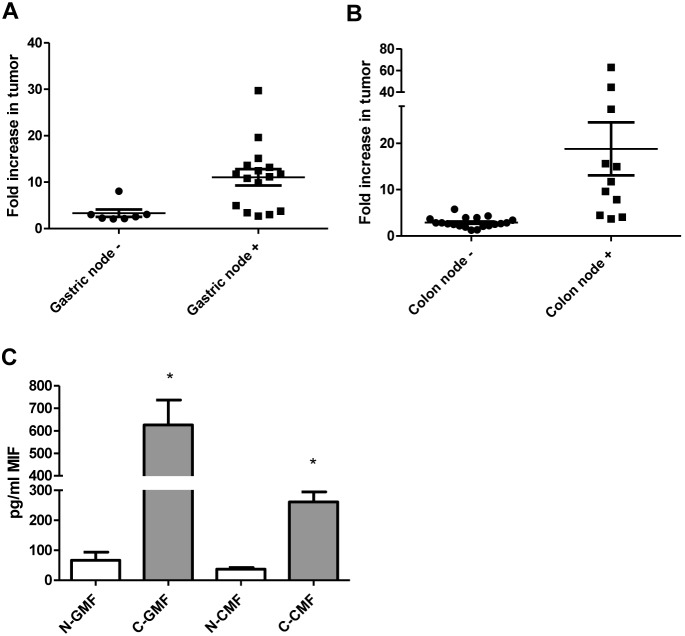 MIF is highly expressed in gastric and colon tumors and human tissue-derived fibroblasts. MIF mRNA levels measured by qRT PCR are increased in A) human gastric tumor samples and at higher levels in tissues from patients with nodal involvement, B) human colon tumor samples and at higher levels in tissues from patients with nodal involvement, and C) in the supernatants tumor derived gastric and colon fibroblasts compared to matched normal as measured by Luminex <t>singleplex</t> assay. N = 8 for C and the mean ± standard error are shown as the results of duplicated in multiple experiments. * p