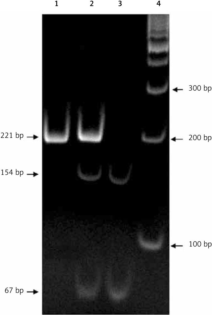 Genotyping results for Arg389Gly polymorphism of β1-adrenergic receptor gene. Shown is pattern of bands on ethidium bromide-stained gel electrophoresis after BstNI digestion of PCR product. Lane 1, homozygous Arg/Arg; Lane 2, heterozygous Arg/Gly; Lane 3, homozygous Gly/Gly; Lane 4, GeneRuler™ 100 bp DNA Ladder (Fermentas). The position and size of bands are indicated by arrows