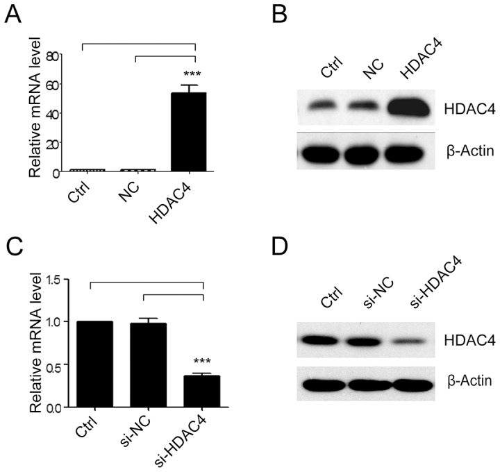 The expression of HDAC4 in transfected SGC-7901 cells. HDAC4 expression was determined in SGC-7901 cells transfected with empty vector (NC) or HDAC4 ( A ) and ( B ). HDAC4 expression was determined in SGC-7901 cells transfected with siRNA oligos targeting HDAC4 (si-HDAC4) or scrambled siRNA (si-NC) by qRT-PCR and western blot ( C ) and ( D ) (n = 4). Data were expressed as mean ± S.E.M. ***P