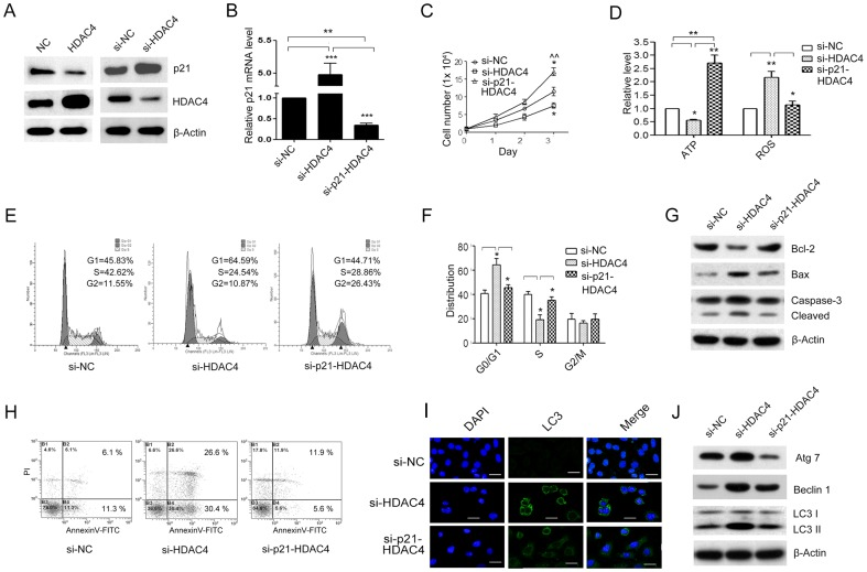 p21 knockdown reversed the effect of down-regulated HDAC4 on the inhibition of SGC-7901 cell growth. Expression of p21 was analyzed by western blot in SGC-7901 cells transfected with empty pcDNA3.1(+)-vector (NC) or HDAC4 and scrambled siRNA control (si-NC) or HDAC4 siRNA oligos (si-HDAC4) respectively ( A ). The p21 mRNA level was analyzed by qRT-PCR in SGC-7901 cells transfected with si-NC, si-HDAC4 alone or combination with siRNA p21 (si-p21) ( B ). The cell growth curve was measured by CCK-8 assay ( *P