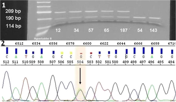 Restriction analysis of DNMT3A R882H mutations. 1) Agarose gel analysis of restricted products of 5 positive (12, 34, 57, 65, 187) and 2 negative (54, 143) patients. Wt samples showed 2 bands at 190 bp and 114 bp. Positive samples showed 3 bands at 289 bp, 190 bp, 114 bp because of the loss of a restriction site of Fnu4HI caused by the mutation. Hyperladder II (Bioline) was used as the marker. 2) Representative sequence analysis of patient 187 showing heterozygote mutation CGC to CAC.
