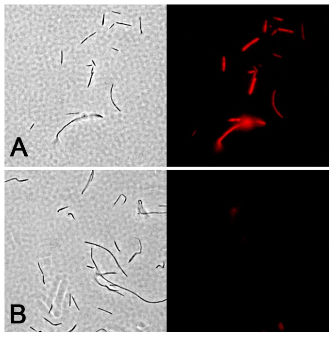 F. nucleatum ssp. nucleatum actively sialylates its outer surface. A) F. nucleatum ssp. nucleatum was grown in SDM before fluorescently labeling surface sialic acids. B) F. nucleatum ssp. nucleatum was grown in the presence of SDM and pretreated with neuraminidase before fluorescently labeling surface sialic acids. All pictures in the left panels are phase contrast images, whereas the right panel images are the corresponding images captured using epifluorescence microscopy. Total magnification is 1000x.