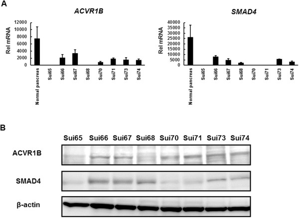 Expression of ACVR1B and SMAD4 in PC cell lines. (A) mRNA expression levels of the ACVR1B and SMAD4 genes in normal pancreatic tissue (RNA from Clontech) and PC cell lines. The expressions were analyzed using real-time RT-PCR. ACVR1B mRNA was scarcely expressed in the Sui65 and Sui68 cell lines, and SMAD4 mRNA was also scarcely expressed in the Sui65, Sui70, and Sui71 cell lines. Rel mRNA, normalized mRNA expression levels ( ACVR1B or SMAD4 / GAPD × 10 6 ); Columns, mean of independent triplicate experiments; Bars, SD. (B) Western blot analysis of ACVR1B and SMAD4 in PC cell lines. ACVR1B was scarcely expressed in the Sui65 and Sui68 cell lines. SMAD4 was scarcely expressed in the Sui65, Sui70, and Sui71 cell lines. The findings confirmed the array-comparative genomic hybridization results. β-actin was used as an internal control.