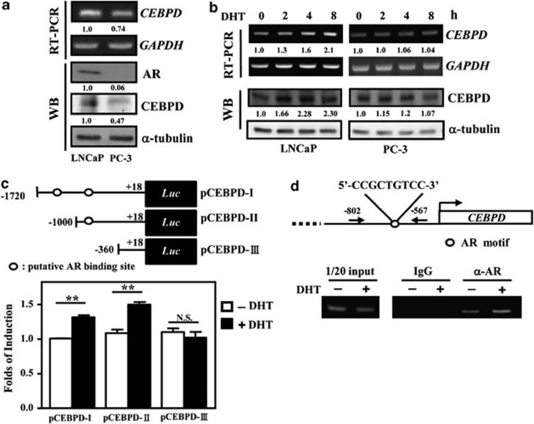 CEBPD is an androgen-responsive gene. ( a ) The level of CEBPD is associated with the abundance of the AR. RT-PCR analysis and a western blot were conducted to detect the expression of CEBPD and AR, as indicated in LNCaP and PC-3 cells in DMEM supplemented with FBS (without charcoal treatment). ( b ) DHT stimulates the expression of CEBPD in LNCaP cells but not in PC-3 cells. RT-PCR analysis and western blot were conducted to detect the expression of CEBPD and AR at the indicated time. The LNCaP and PC-3 cells were cultured in DMEM supplemented with charcoal-treated FBS. ( c ) DHT activates the activity of a CEBPD reporter in LNCaP cells. LNCaP cells were transfected with the reporter pGL2-Basic vector carrying fragments of the CEBPD promoter (−1720 to +18 bp, −1000 to +18 bp or −360 to +18 bp). After 16 h of transfection, the transfectants were treated with 10 nM DHT for 6 h and the cell lysates were harvested for luciferase assay. Columns, the average of three independent experiments in duplicate measurements; bars, mean±S.D. (** P