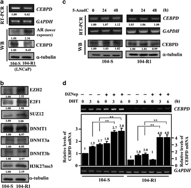 The SUZ12/EZH2-associated histone K27 tri-methylation attenuates DHT-induced CEBPD transcription in PrCa cells. ( a ) The expression of CEBPD and AR in LNCaP 104-S and 104-R1 cells. RT-PCR and western blot assays were conducted to detect the expression of CEBPD and AR. The LNCaP 104-S (androgen sensitive) and 104-R1 (androgen insensitive) cells were cultured in DMEM supplemented with FBS without charcoal treatment. ( b ) The endogenous EZH2, E2F1, SUZ12, DNMT1, DNMT3a, DNMT3b and H3K27me3 expression in LNCaP 104-S and 104-R1 cells. Western blot assays were conducted to detect the expression of protein levels. The LNCaP 104-S (androgen sensitive) and 104-R1 (androgen insensitive) cells were cultured in DMEM supplemented with charcoal-treated FBS. ( c ) The DNA methyltransferase inhibitor 5-AzadC does not reverse the transcription of CEBPD in LNCaP 104-R1 cells. RT-PCR and western blot assays were conducted to detect the expression of CEBPD in response to 5-AzadC in LNCaP 104-S or 104-R1 cells. Two independent experiments were conducted and showed a similar pattern. ( d ) DHT-stimulated CEBPD transcription was enhanced in cells that were treated with the histone methyltransferase inhibitor DZNep. LNCaP 104S and 104-R1 cells incubated with 1 μ M DZNep. After 18 h of treatment, cells were treated with 10 nM DHT and the cell lysates were harvested at the indicated time to perform RT-PCR with specific primers. Three independent experiments were conducted and statistically plotted. Columns, the average of three independent measurements; bars, mean±S.D. (** P