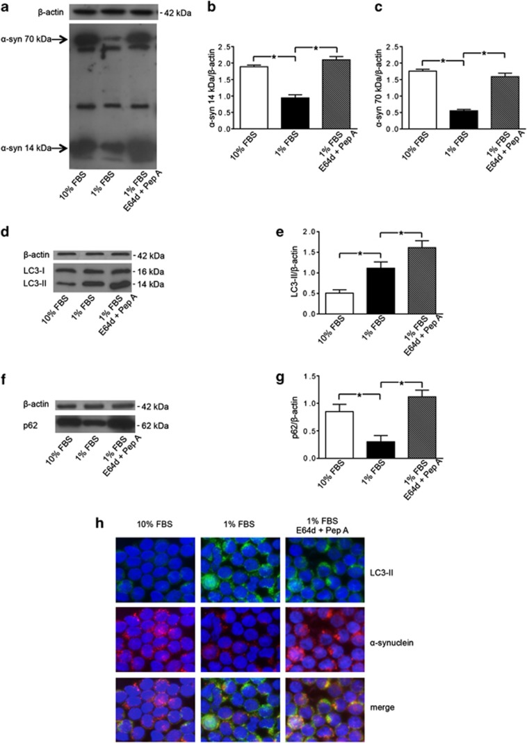 Alpha-synuclein ( α -syn) degradation by autophagy in T lymphocytes. ( a ) Western blot analysis of α -syn expression in T lymphocytes cultured with (i) 10% FBS, (ii) 1% FBS and (iii) 1% FBS plus lysosomal inhibitors E64d and pepstatin A (Pep A). Blots shown are representative of five independent experiments. The bands of α -syn at 14 kDa (monomeric form) and at 70 kDa (aggregate form) are indicated by the arrows. Densitometry analysis of ( b ) the monomeric form of α -syn at 14 kDa ( α -syn 14 kDa/ β -actin) and of ( c ) the aggregate form of α -syn at 70 kDa ( α -syn 70 kDa/ β -actin) are shown. Values are expressed as means±S.D. * P