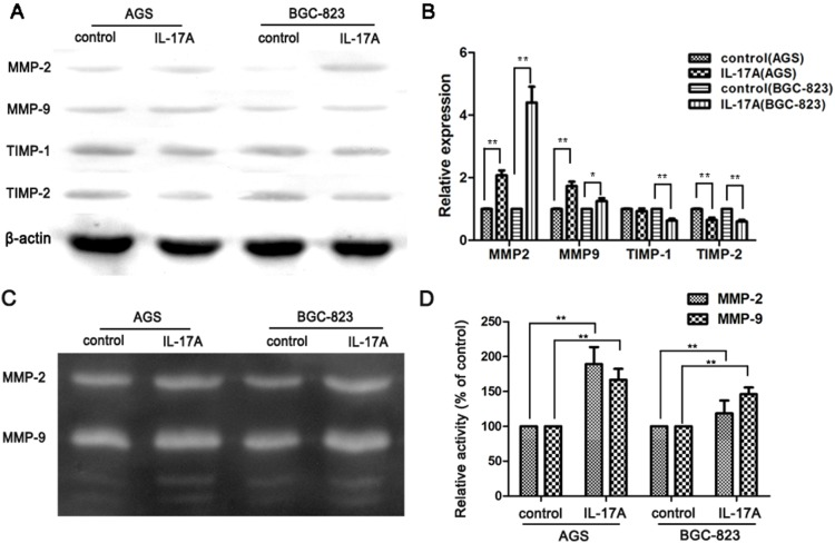 IL-17A promotes the expressions and activities of MMP-2 and MMP-9 and suppresses the expressions of TIMP-1 and TIMP-2 in gastric cancer cells. (A) Expressions of MMPs in GC cells (AGS and BGC-823) were compared by western blotting between cells treated with and without IL-17A (50 ng/ml) for 24 h. (B) Quantification of the protein levels of MMP-2 and MMP-9. (C) Effects of IL-17A on the activities of MMP-2 and MMP-9. (D) Quantification of the activities of MMP-2 and MMP-9. Values represent the means ± SD of three independent experiments performed in triplicate. * p
