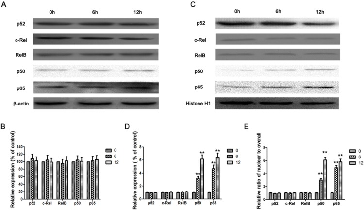 IL-17A activates NF-κB pathway in AGS cells. (A) Western blotting analysis was used to detect overall p50, p65, p52, c-Rel and RelB expression in AGS cells treated with IL-17A (50 ng/ml) at indicated time points. (B) Quantification of the protein levels of overall p50, p65, p52, c-Rel and RelB. (C) Western blotting analysis was used to detect nuclear p50, p65, p52, c-Rel and RelB expression in AGS cells treated with IL-17A (50 ng/mL) at indicated time points. (D) Quantification of the protein levels of nuclear p50, p65, p52, c-Rel and RelB. (E) The relative ratio of nuclear to overall fraction of p50, p65, p52, c-Rel and RelB. Values represent the means ± SD of three independent experiments performed in triplicate. ** p