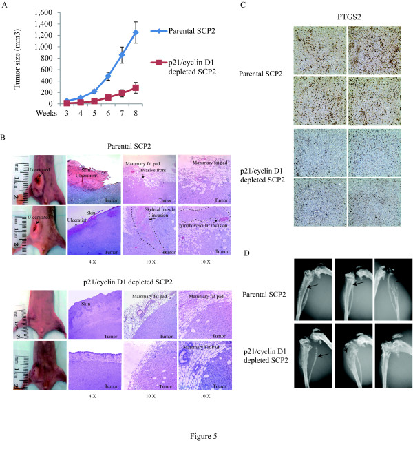 Depletion of cyclin D1 and p21 prevents mammary tumor growth and local invasion . (A) Parental SCP2 and p21/cyclin D1 double knockdown SCP2 cells were implanted into the mammary fat pad of four- to six-week-old female Balb/c nude mice. Mammary tumor growth was measured from two sets of mice and quantified for the tumor size at the indicated times (six per group; error bars indicate SEM). (B) Representative photographs show hematoxylin and eosin staining of the mammary gland (tumor and surrounding tissues) of mice at eight weeks post-injection. (C) Representative photographs show PTGS2 staining of parental and p21/cyclin D1-depleted mammary tumor of mice at eight weeks post-injection. (D) Representative radiographs of skeletal lesions in two groups of mice (parental and p21/cyclin D1-depleted SCP2) were taken by X-ray using Faxitron. Parental and p21/cyclin D1-depleted SCP2 cells were injected in tibia. The lesions are highlighted by arrows.