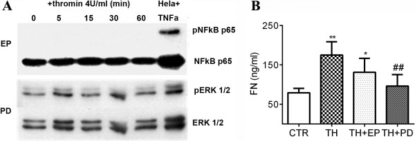 Inhibitors for NFκB p65 and ERK 1/2 suppress thrombin-stimulated FN secretion. A : MSCs were pretreated with EP or PD, followed by thrombin treatment with a dose of 4 U/ml. The cells were collected at the indicated time points for Western blotting.  B : The supernatants were collected after MSCs were cultured for 48 hours in the presence or absence of thrombin (TH, 4 U/ml), EP or PD. The concentrations of FN were assessed by ELISA. ** P