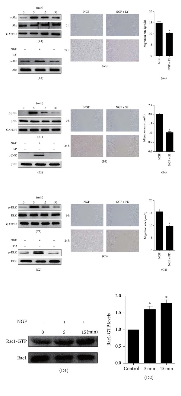The effect on human skin fibroblast migration of blocking JNK, ERK, or PI3K/Akt pathways with specific inhibitors. ((A1), (B1), and (C1)) The levels of Akt, JNK, and ERK activity were all enhanced after treatment with 100 ng/mL of NGF for 5, 15, or 30 min. ((A2), (B2), and (C2)) The activity of Akt, JNK, or ERK following 5 min of NGF treatment was abolished by the corresponding specific inhibitor: LY294002 (10 μ M, LY is the abbreviation for LY294002), SP600125 (10 μ M, SP is the abbreviation for SP600125), or PD98059 (10 μ M, PD is the abbreviation for PD98059). ((A3), (A4), (B3), (B4), (C3), and (C4)) The NGF-induced migration of human skin fibroblasts induced by NG was significantly impaired after incubation with LY294002 (10 μ M), SP600125 (10 μ M), or PD98059 (10 μ M). * P