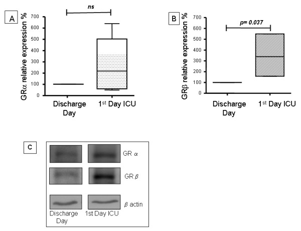 Western blot analysis of glucocorticoid receptor α and β isoforms of peripheral blood mononuclear cells from septic patients . GRα and GRβ cell expression were evaluated by western blotting in peripheral blood mononuclear cells from septic patients on ICU admission (first day in the ICU) and on the day of hospital discharge, which was considered as the control situation (free of sepsis). The quantification of the western blot analysis of (A) GRα and (B) GRβ is shown. The values were normalized to β actin expression and are expressed as percentage values of the control (GR expression on the day of hospital discharge). Data are presented as median value, 25% to 75% (box) and minimum-maximum (vertical line). (C) Representative western blot analysis of GRαGRβ and β actin are shown. GR, glucocorticoid receptor; ICU, intensive care unit.