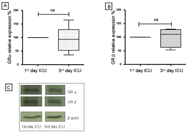 Western blot analysis of glucocorticoid receptor α and β isoforms of peripheral blood mononuclear cells from septic patients on first and third day in the intensive care unit . The <t>GRα</t> and GRβ cell expressions were evaluated by western blotting in peripheral blood mononuclear cells from septic patients on the first and third day in ICU. The quantification of the western blot analysis of (A) GRα and (B) GRβ are shown. The values were normalized to β actin expression and are expressed as percentage values of the GR expression on the first day in ICU. Data are presented as median value, 25% to 75% (box) and minimum-maximum (vertical line). ns = not statistically significant. (C) Representative western blot analysis of GC receptors αβ and β actin are shown. GR, glucocorticoid receptor; ICU, intensive care unit.