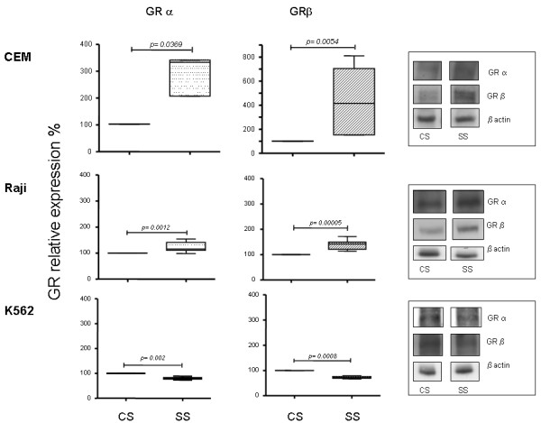 Effect of human septic serum on glucocorticoid receptor isoform expression in different cell lines . CEM, Raji and K562 cell lines were cultured in the presence of the patients' septic serum and serum obtained from the control group at 10% final concentration in the culture medium. After 48 h in culture, the GR protein expression was analyzed by western blotting with specific antibodies for GRα and β isoforms. The quantification of the western blot analysis of (A) GRα and (B) GRβ are shown ( n = 9). The values were normalized to β actin expression and are expressed as percentage values of the control (GR cell expression cultured in the presence of control serum). Data are presented as median value, 25% to 75% (box) and minimum-maximum (vertical line). Representative western blot analysis of GRα, β and β actin are shown for each cell line. CS, control serum; GR, glucocorticoid receptor; SS, septic serum.