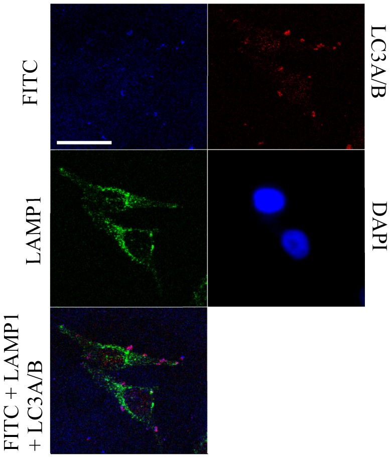 Confocal fluorescence microscopy images showing localization of FITC-tagged hMT-IIa-specific sequence functionalized nanoparticles in fixed HeLa cells. HeLa cells were transfected with FITC-tagged hMT-IIa-specific sequence functionalized nanoparticles in the presence of Lipofectamine. The overall FITC signal was reduced so that the level of fluorescence from the observed circular bodies was not saturating. The distribution of the LAMP1 protein extends through the majority of the cytoplasmic area thus provides an impression of the cell. In the overlayed image, the magenta regions indicate the presence of cellular bodies in which the FITC signal from the nanoparticles overlaps with the signal for the LC3A/B autophagosomal protein marker. The scale bar represents 25 microns and the images shown are all from a single z-plane (a 0.7 micron section).