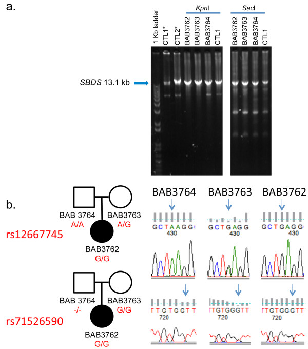 Additional studies of the genomic segment that includes SBDS supports the presence of an insertion of unknown origin within the paternal allele. a . Agarose gel analysis of a 13.1 kb long-range PCR product spanning SBDS and flanking region, the region targeted by the Southern blotting studies (Figures 2 and 3 ). DNA from patient (BAB3762), parents (BAB3763- mother, BAB3764-father) and a normal controls (CTL1 and CTL2) were amplified using primers DelFb + KpnR, and then digested with either Kpn I or Sac I. Kpn I did not digest the 13.1 kb PCR product, consistent with lack of amplification of the paternal allele. Consistently, Sac I digestion of the 13.1 kb PCR product showed an identical pattern in samples and controls. b . Sanger sequencing of intron 2 amplified along with exon 2 using short range PCR revealed inconsistent segregation of a paternal genotype for two polymorphic SNPs in the patient (BAB3762). *Non-digested PCR product.