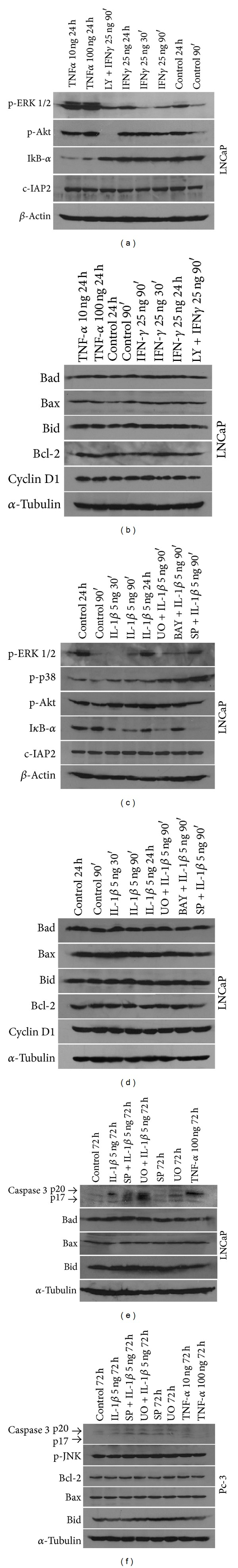 Western blot analysis of LNCaP protein expression. (a) and (b) LNCaP cells were treated with TNF- α (10 and 100 ng/mL) for 24 h or IFN- γ (25 ng/mL) for 30, 90 min, and 24 h or pretreated with LY-29004 (20 μ M) for 1 h and then treated with IFN- γ (25 ng/mL) for 90 min. Untreated cells for 90 min and 24 h were used as controls (ctrl). (c) and (d) LNCaP cells were treated with IL-1 β (5 ng/mL) for 30, 90 min, and 24 h or pretreated with UO126 (30 μ M), BAY-117082 (30 μ M), or SP600125 (30 μ M) for 1 h and then treated with IL-1 β (5 ng/mL) for 90 min. Untreated cells for 90 min and 24 h were used as controls (ctrl). (e) and (f) LNCaP and PC-3 cells were treated with IL-1 β (5 ng/mL) or TNF- α (10 and 100 ng/mL) or SP600125 (30 μ M) or UO126 (30 μ M) for 72 h, or pretreated with SP600125 (30 μ M) or UO126 (30 μ M) for 1 h and then treated with IL-1 β (5 ng/mL) for 72 h. Untreated cells for 72 h were used as controls (ctrl). Cell extracts were resolved by SDS-PAGE and analyzed by western blot with antibodies against Bid, Bad, Bax, Bcl-2, Cyclin D1, p-ERK 1/2, p-p38, p-Akt, I κ B- α , c-IAP2, and caspase 3. Reprobing with antibody against α -tubulin or β -actin was used as a loading and transfer marker.
