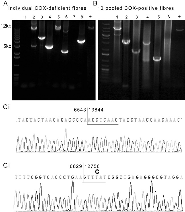 Confirmation of mitochondrial DNA (mtDNA) deletions and identification of breakpoints. ( A – B ) When DNA extracted from individual respiratory-deficient paraspinal muscle fibres was subjected to long-range polymerase chain reaction (PCR), multiple mtDNA deletions were detected. However, more than one or two mtDNA deletions within an individual fibre was rarely identified, suggestive of clonally expanded mtDNA deletions ( A ). When DNA was extracted from 10 pooled fibres with intact mitochondrial respiratory chain complex IV or cytochrome c oxidase (COX) activity, multiple mtDNA deletions were also detected ( B ); however, real-time data shown in Figure 2 did not indicate expansion of mtDNA deletions to high heteroplasmy levels in such fibres. COX-deficient: fibres lacking complex IV and with intact complex II activity. COX-positive: fibres with complex IV activity. + indicates full-length amplified product from wild-type DNA. Lanes 1–8 ( A ) show amplified products of DNA extracted from individual fibres from different cases and lanes 1–6 ( B ) show 10 pooled fibres, from different cases. ( C ) Sequencing of individual mtDNA deletions extracted following long-range PCR confirmed the mtDNA deletions and identified breakpoints. MtDNA deletions were flanked by either a perfect ( Ci ) or an imperfect ( Cii ) repeat sequence as previously reported in ageing [ 23 ].
