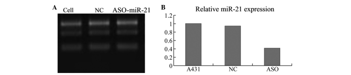 (A) Quantitative polymerase chain reaction (qPCR) result demonstrating mRNA expression of miR-21 in A431 cells, cells transfected with an unrelated fragment of control (NC) and cells transfected with ASO-miR-21. (B) The relative expression level of miR-21 in the A431 cells was significantly decreased by ASO-miR-21 compared with the control (P
