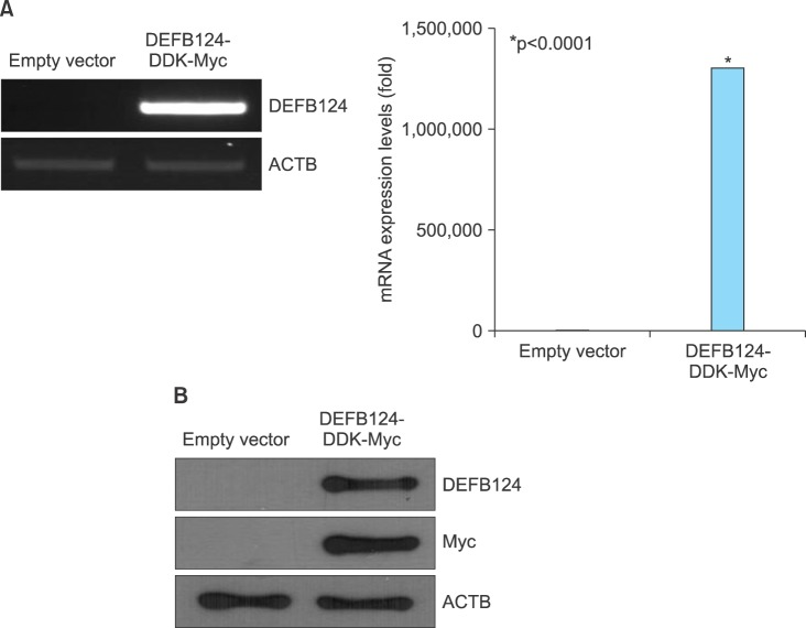 <t>Overexpression</t> of β-defensin 124 <t>(DEFB124)</t> in RWPE-1 cells. (A) DEFB124 mRNA overexpression. The RWPE-1 cells were transfected with DEFB124-DDK-Myc vector or empty vector, and DEFB124 mRNA expression was determined by reverse transcription-polymerase chain reaction (left) and quantitative real-time polymerase chain reaction (right). ACTB was used as an internal control. Asterisk represents statistical significance at p