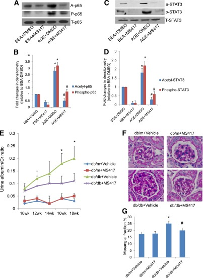 Effects of bromodomain inhibitor in DN. MS417, a bromodomain inhibitor, suppressed acetylation of Stat3 and NF-κB in podocytes treated with AGE. Podocytes were incubated with either BSA or AGE-BSA together with DMSO or MS417 (1.0 μmol/L) for 24 h. Western blot analysis was performed in these cells for acetyl, phosphor- and total p65 ( A ) and STAT3 ( C ). The representative blots of three independent experiments are shown. The densitometry analyses of these Western blots are shown for p65 ( B ) and STAT3 ( D ). The ratios of acetyl-protein or phosphor-protein to total protein were calculated for p65 and STAT3. The fold changes relative to cells treated with BSA + DMSO are shown. * P
