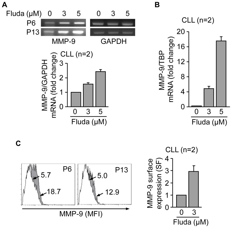 Fludarabine transcriptionally upregulates MMP-9 and induces its localization to the CLL cell membrane. (A,B) 10–15×10 6 CLL in RPMI/0.1% FBS cells from two different patients were treated with 3 or 5 µM fludarabine (Fluda) for 48 h and MMP-9 mRNA expression was analyzed by <t>RT-PCR</t> (A) and <t>qPCR</t> (B). Normalized average values (fold change) are shown. (C) 1.5×10 5 CLL cells from two different patients were incubated with or without 3 µM fludarabine for 48 h and MMP-9 surface expression was analyzed by flow cytometry. White areas, control/untreated cells; grey areas, fludarabine treated cells. Arrows indicate specific fluorescence (SF) values for each cell population. Normalized average values are also shown.