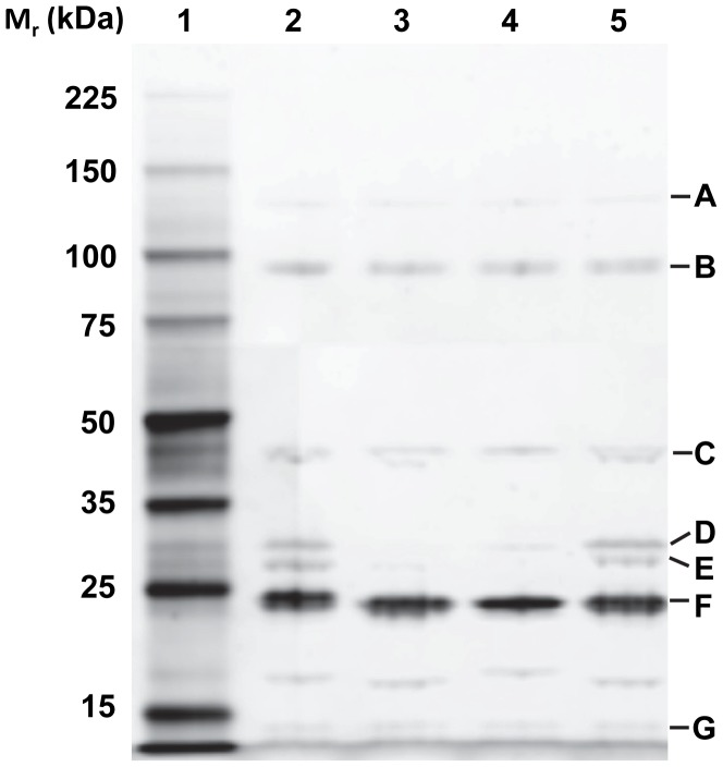 T1-like structural proteins (Lane 2-5) alongside the standard marker (Lane1) separated on 12% SDS-PAGE gel and visualized by Coomassie brilliant blue R250 stain. A, tail fiber protein; B, tail tape measure protein; C, portal protein; D, major capsid protein; E, minor tail protein; F, major tail protein; G, conserved hypothetical protein.