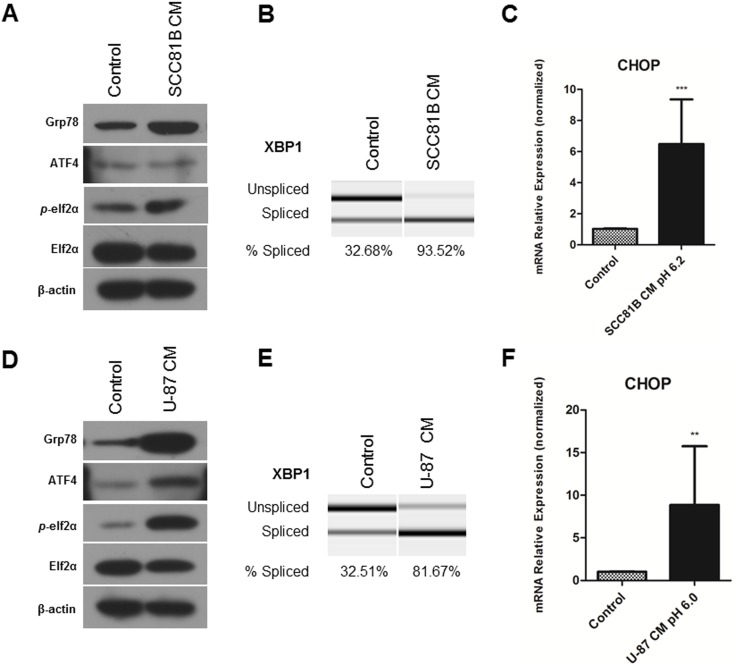 Tumor conditioned medium induces UPR in endothelial cells. Primary human endothelial cells, HDMECs, are maintained in conditioned medium obtained from oral squamous cell carcinoma UM-SCC-81B cell line ( A, B, C ) or U-87 glioblastoma cell line ( D, E, F ), HDMECs kept at regular medium served as control. Cell lysates were collected for western blot analysis, β-actin expression was used as a loading control. A, D , Treatment with CM increased protein expression of UPR markers: Grp78, ATF4, p -elf2α at 48 hours (western blot analysis). B, E , Exposure to CM increased XBP1 mRNA splicing levels at 48 hours. C, F , CM treatment upregulated CHOP mRNA levels. RNA was collected using Qiagen RNAeasy kit, reverse transcribed and analyzed using RT-PCR. Values are means ± SEM. Columns, means of individual experiments; Bars, SEM.**p